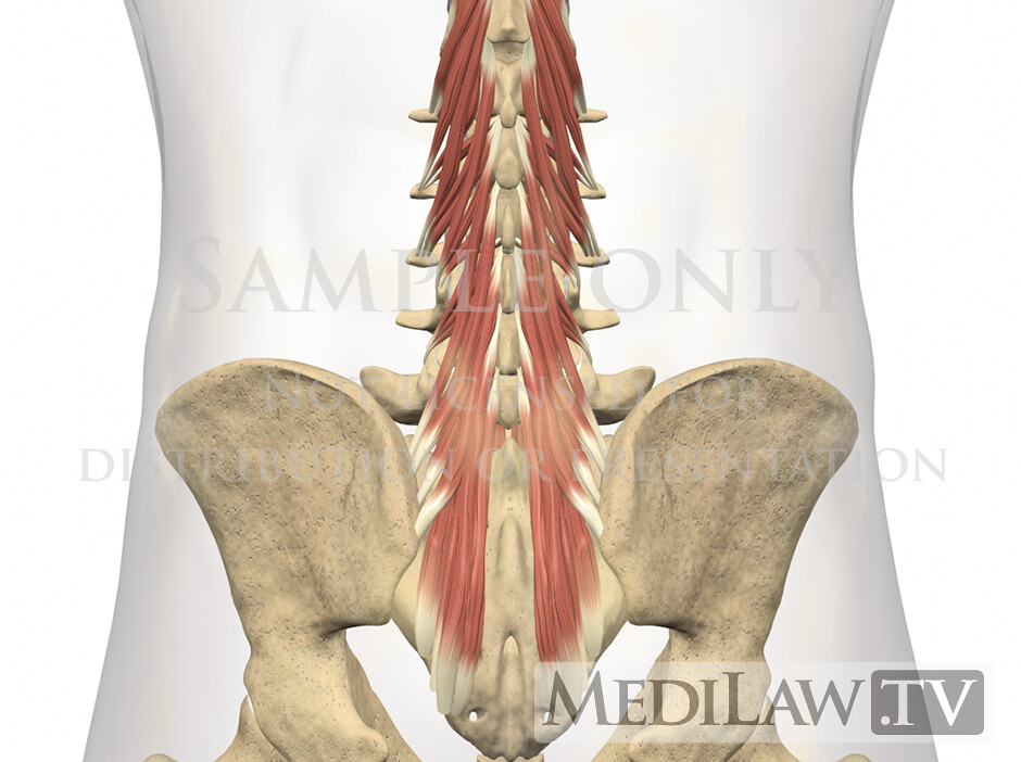 Trial Exhibit Information Lumbar Muscles Multifidus 02 Flickr