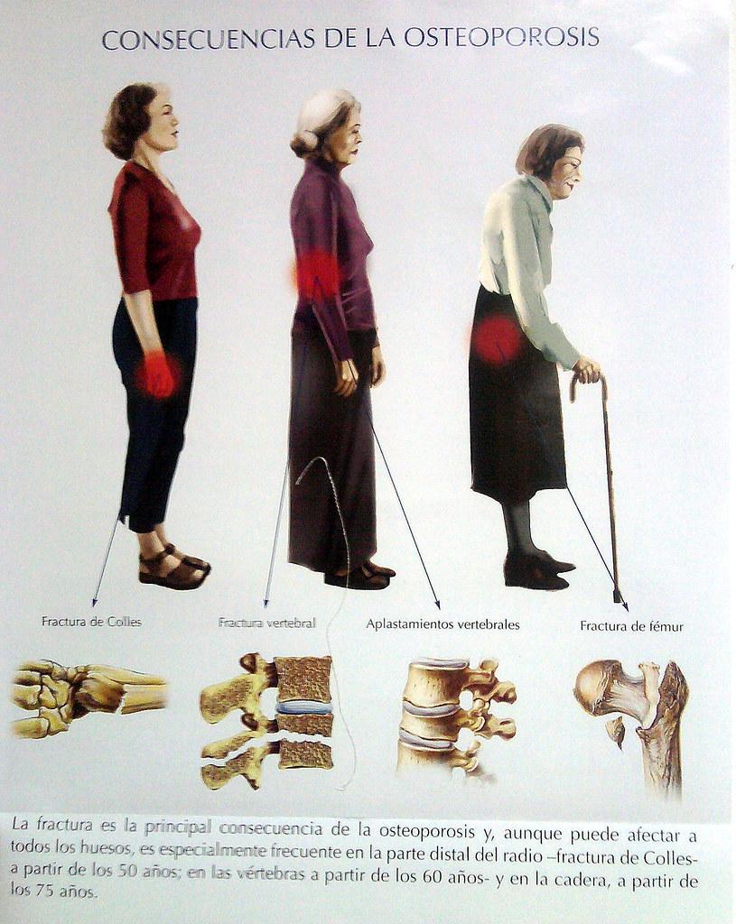 Consecuencias De La Osteoporosis Certo Xornal Flickr
