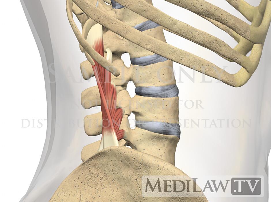 chiropractic graphics Lumbar-Muscles-Quadratus-Lumborum-04…   Flickr