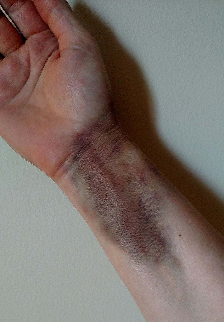 Wrist bruise progress