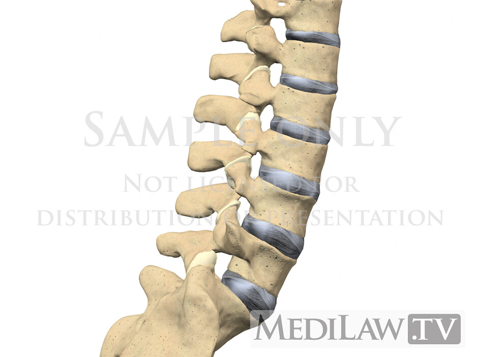 medical-legal exhibit information Lumbar-Facet-Joint-Anato… | Flickr