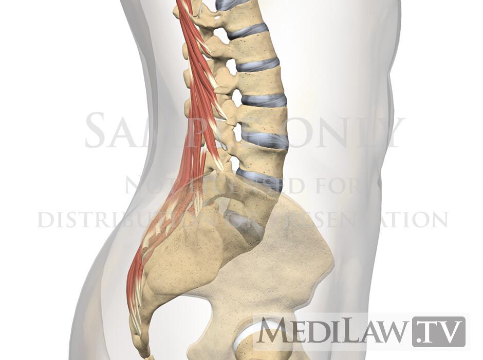 Attorney Information Lumbar Muscles Multifidus 03 Lumbar M Flickr