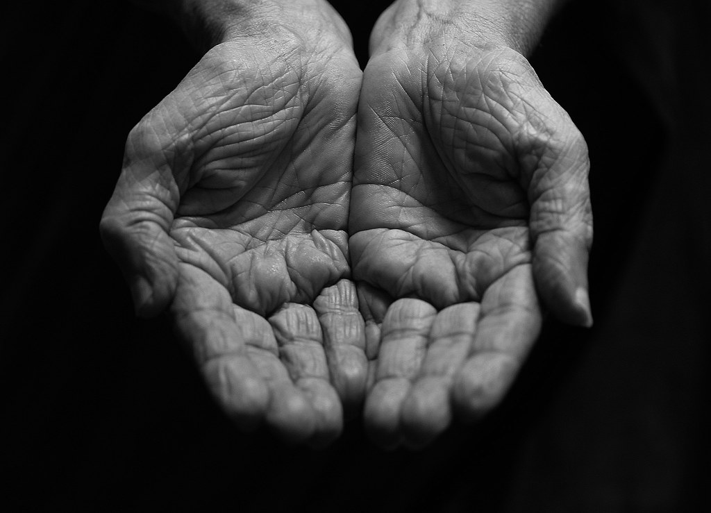 Image result for dry hands flickr