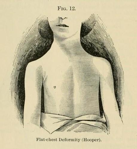 Flat-chest deformity   Arallyn!   Flickr
