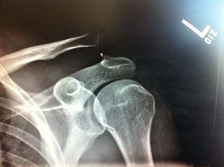 Left shoulder - clavicle is raised more than 100% = type V separation doh | by justin