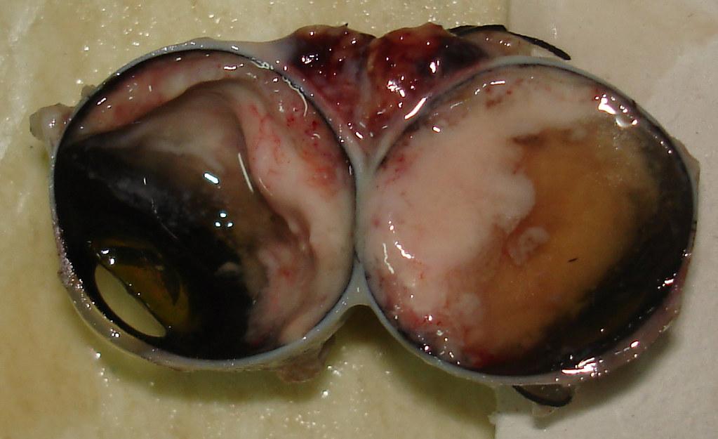 Real Eyeball Cut In Half | www.pixshark.com - Images ...