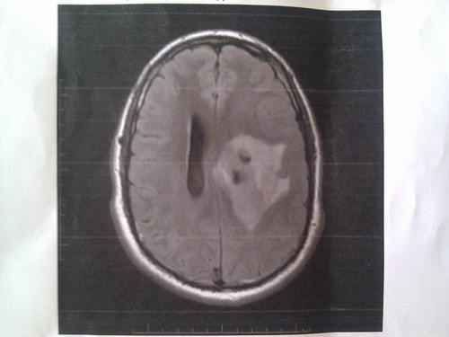 Brain tumor MRI scans | by mathrock