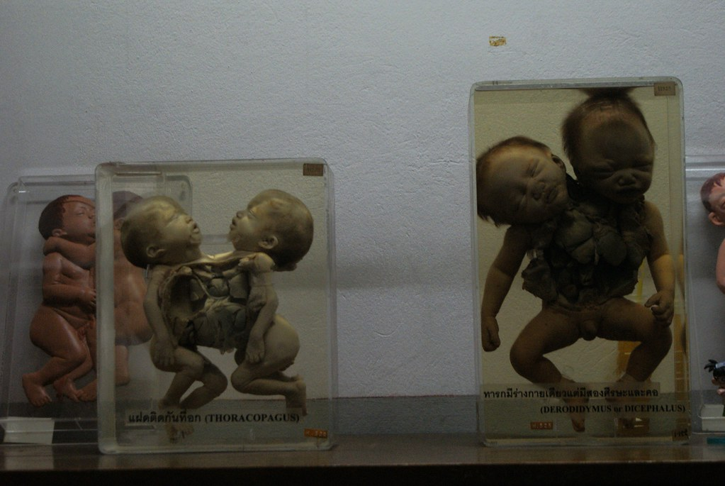 Jumeaux siamois au musée médicale (et d'anatomie) de Bangkok. Siam est l'ancien nom de la Thaïlande.