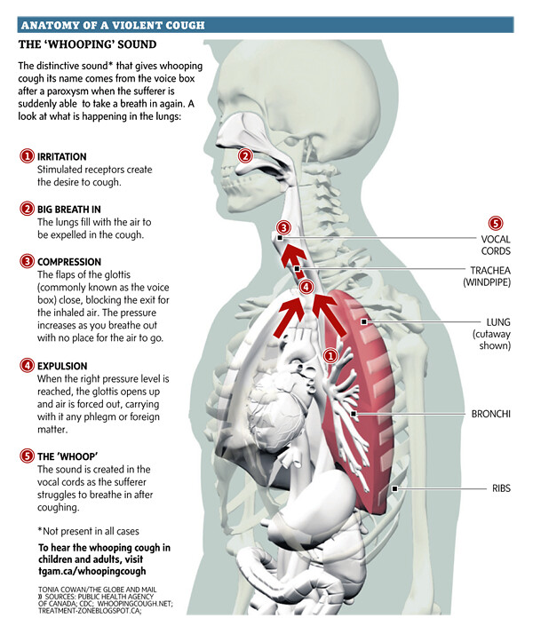 Anatomy of a violent cough: The \'whooping\' sound. | Graphic … | Flickr