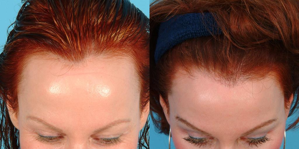 Female Hairline Lowering Flickr
