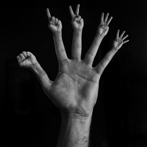 Hand with 30 fingers - Hydra | by Sebastian Zdyb