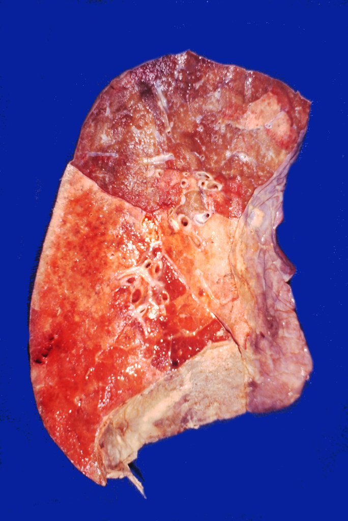 Lobar pneumonia | Diffuse consolidation of the lower lobe wi… | Flickr