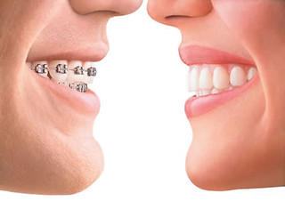 Orthodontics | by Brian Dental Care