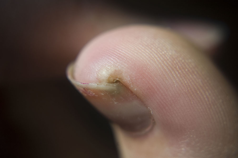Flea Located Under Toenail Tunga Penetrans Flickr