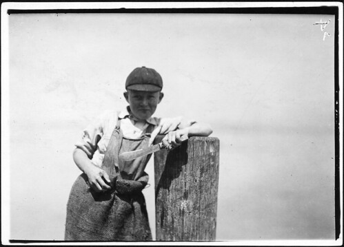Butcher knife used by Ralph, a young cutter in a canning factory, and a badly cut finger. Eastport, Me, August 1911 | by The U.S. National Archives