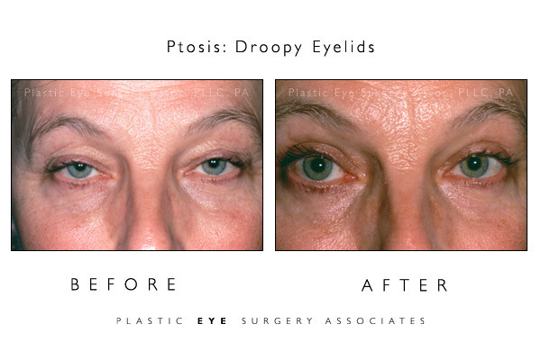Ptosis Before & After