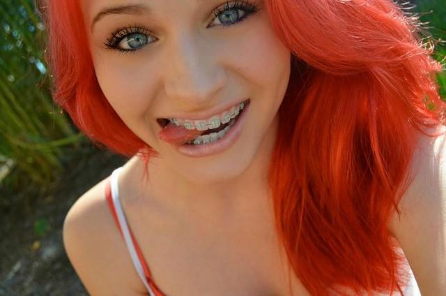 Happen often Redhead braces girls