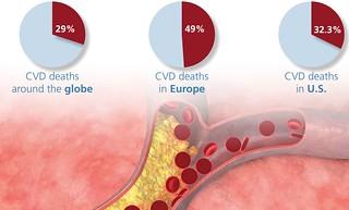 49% - boli cardiovasculare in Europa in 2010