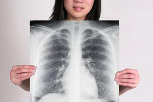 Pengobatan flek paru pada bayi