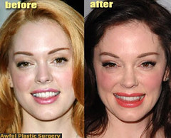 the disadvantages of plastic surgery