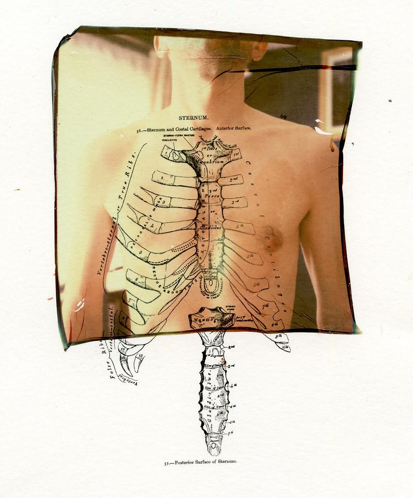 Sternum 56 Sternum And Costal Cartilage Original Photo Flickr