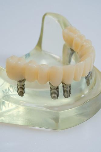 老人家全口缺牙,到底植牙好還是活動假牙好?林孟儒醫師專業觀點分享 (1)_植牙