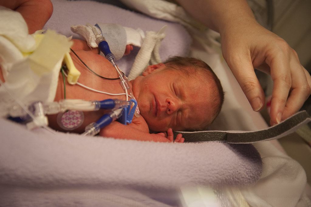 Image result for premature baby