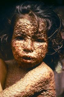 vaccines-smallpox-victim Vaccines & Immunizations