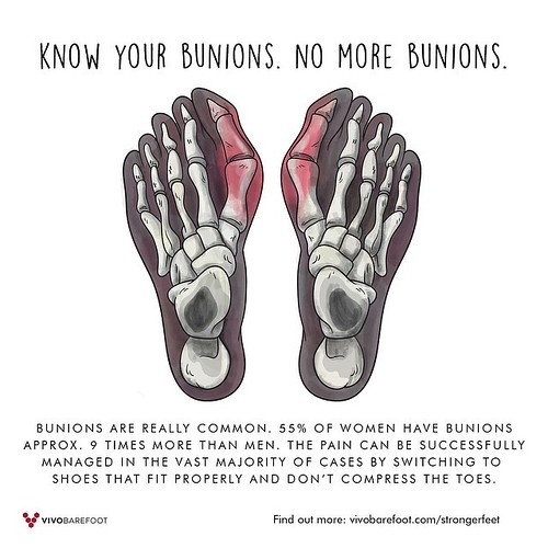 Bunions are common. 55% of women have bunions approximately 9 times more than men. The most common cause of bunions is the prolonged wearing of poorly fitting shoes, usually shoes with a narrow, pointed toe box that squeezes the toes into an unnatural pos | by VIVOBAREFOOT