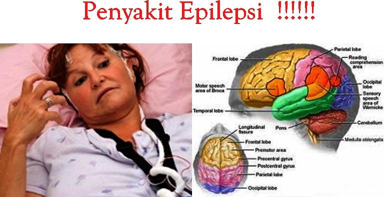 Inilah 5 Penyebab Kambuhnya Epilepsi