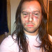 Andrew W.K.'s Party Face Rash