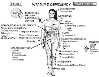 vitamin d deficiency diseases க்கான பட முடிவு