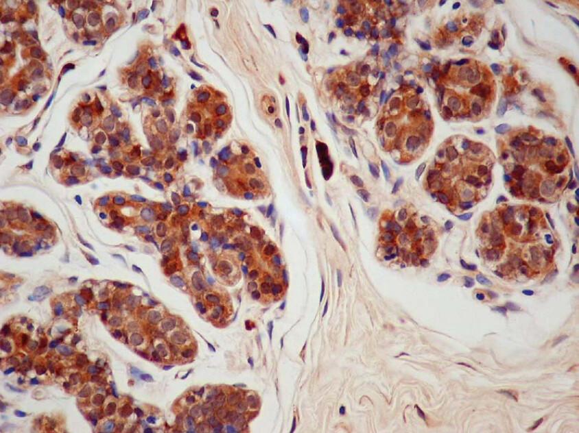 steroid sulfatase deficiency estriol