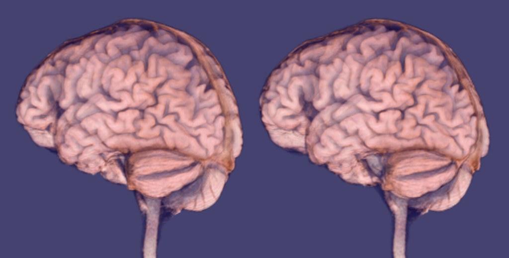 brain mri scan 3d - photo #21