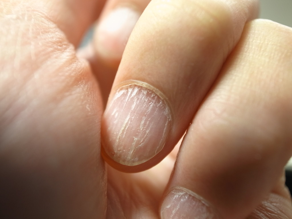 10 early warning signs of disease you can identify using your nails ...
