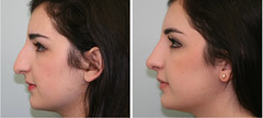 22939 before-and-after-rhinoplasty-profile-view