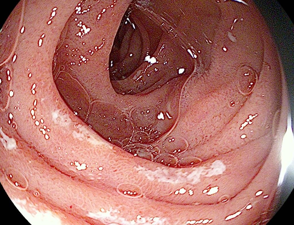 Candida intestine
