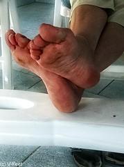Mature rough soles feet