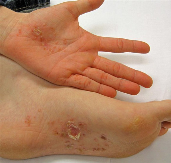 hand foot mouth disease on bottom