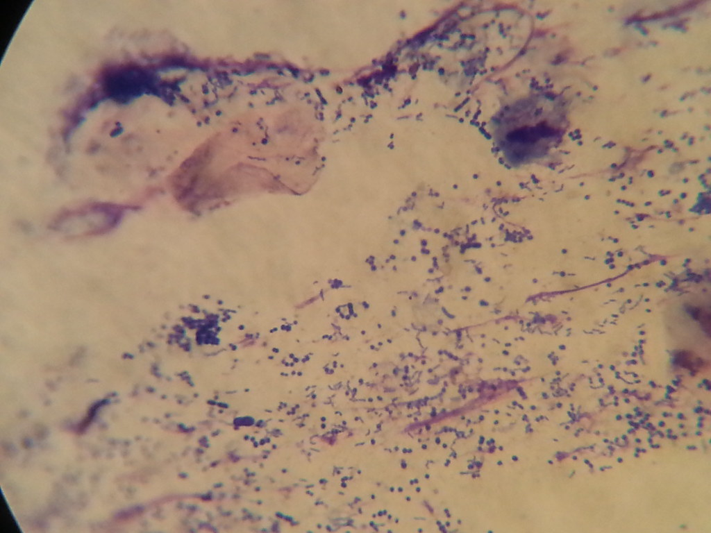 Cytology From Ears Mixed Cocci And Rod Infection Rayya