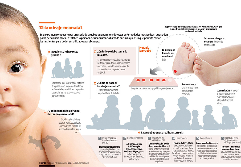 tratamiento de litiasis de acido urico medicamentos para bajar el acido urico alto metabolismo de purinas acido urico