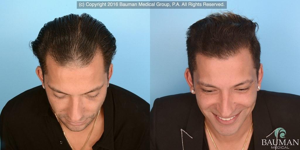 Martino Cartier Before After Hair Transplant Dralanbauma Flickr