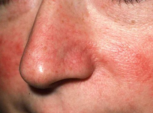 Types Of Rosacea Facial Redness Erythema The Medical