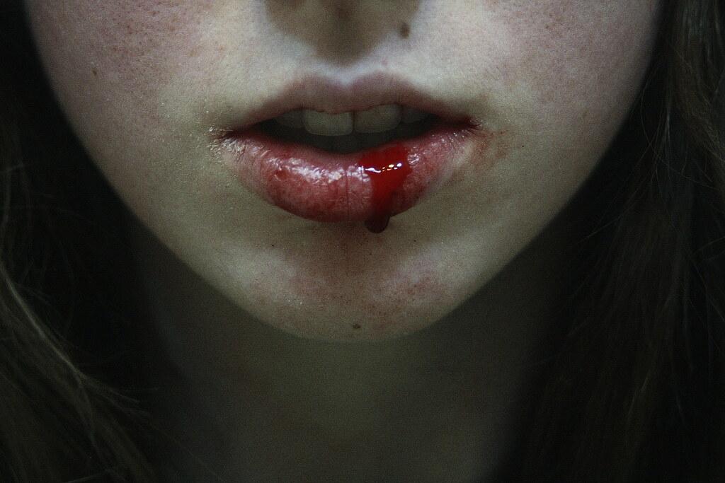 Bloody Lips bloody lips   y...
