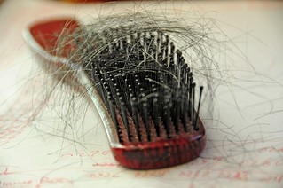7168701688 121ee600c4 n Read These Helpful Tips About Hair Loss