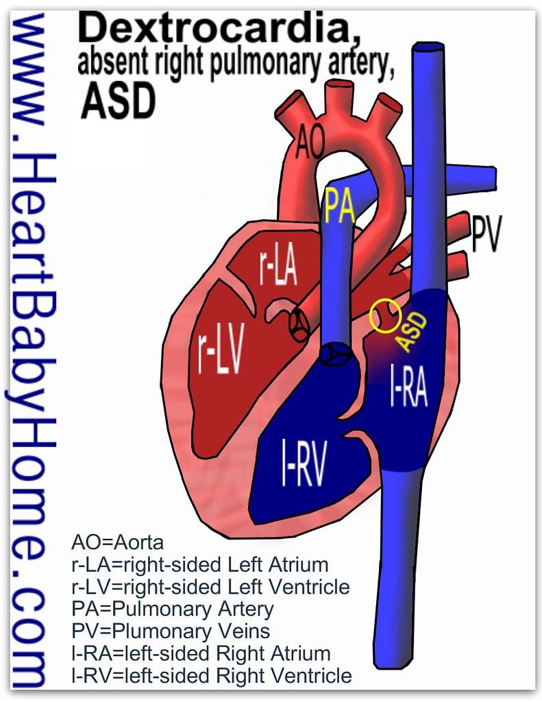 Dextrocardiapulmonary Arteryd Heart Defect As Part Of Flickr