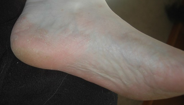 Athlete S Foot Treatment Home Remedies Kids