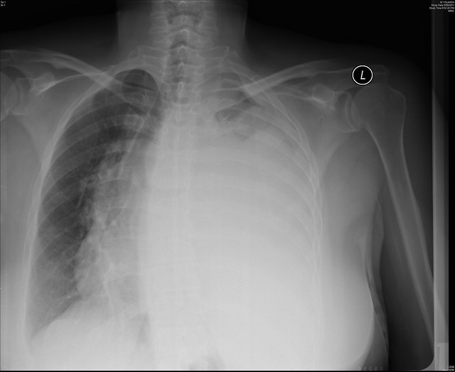 Pleural effusion - Left lung | Flickr - Photo Sharing!