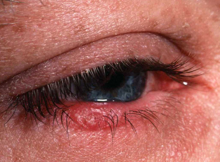 Ocular Rosacea: Rosacea of the Eye - Rosacea Center ...