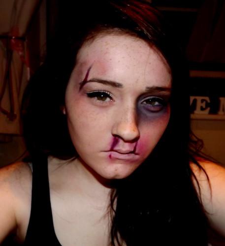 Black Eye, Spilt Lip, Spilt Eyebrow and Bloody Nose | Flickr
